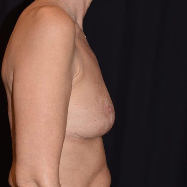 Efter bröstlyft. Patient från sidan_194090
