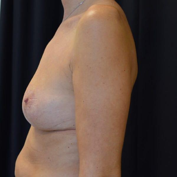 Efter bröstlyft. Patient från sidan1_194090