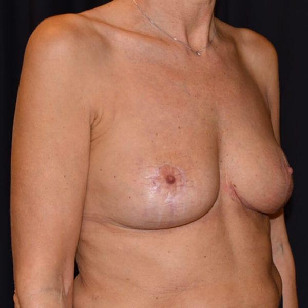 Efter bröstlyft. Patient snett från sidan_194090