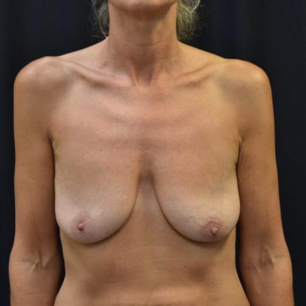 Innan bröstlyft. Patient snett framifrån_194090