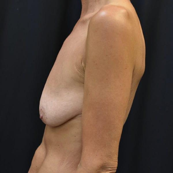 Innan bröstlyft. Patient från sidan1_194090