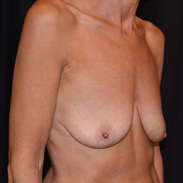 Innan bröstlyft. Patient snett från sidan_194090