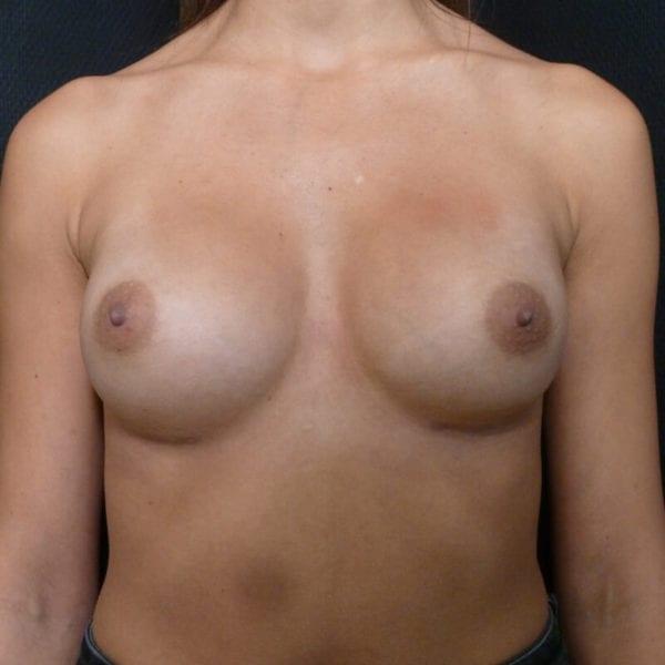 Kvinna framifrån efter bröstförstoring_198328