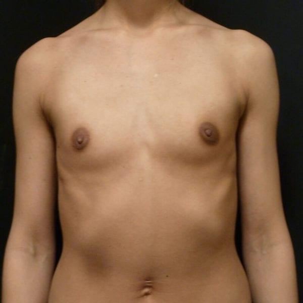 Kvinna framifrån innan bröstförstoring_198328