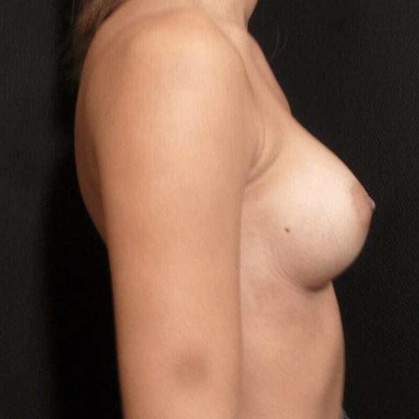 Kvinna från sidan innan bröstförstoring_198328