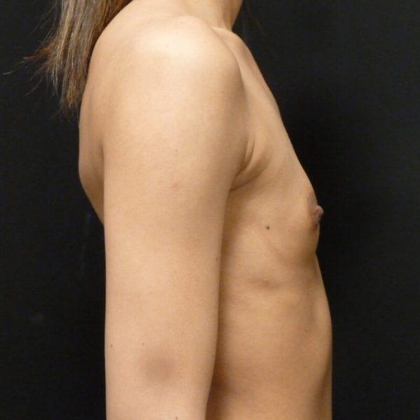 Kvinna från sida innan bröstförstoring_198328