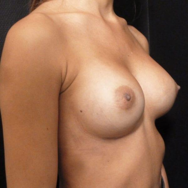 Kvinna snett från innan bröstförstoring_198328