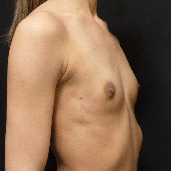 Kvinna snett från sidan innan bröstförstoring_198328