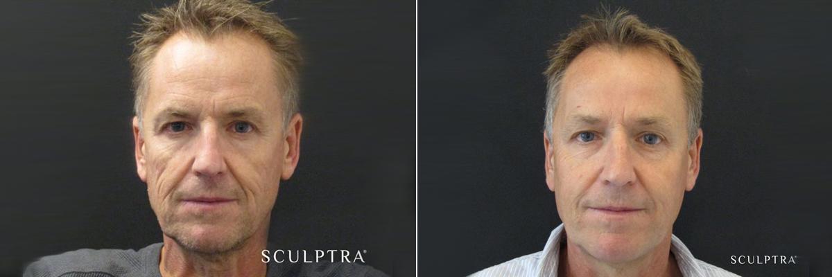 Före och efter Sculptra Injektionsbehandling