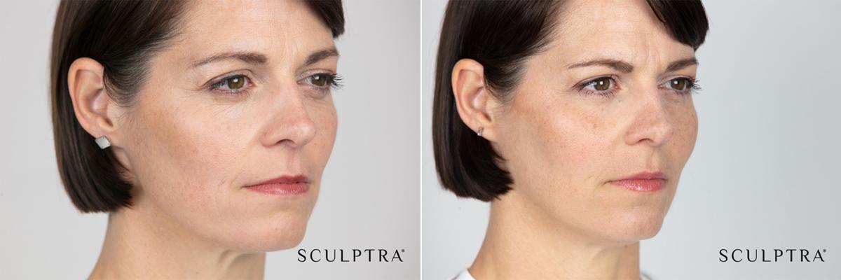 Före- och efterbilder på patient harPatient före och en tid efter Sculptra injektionsbehandling.