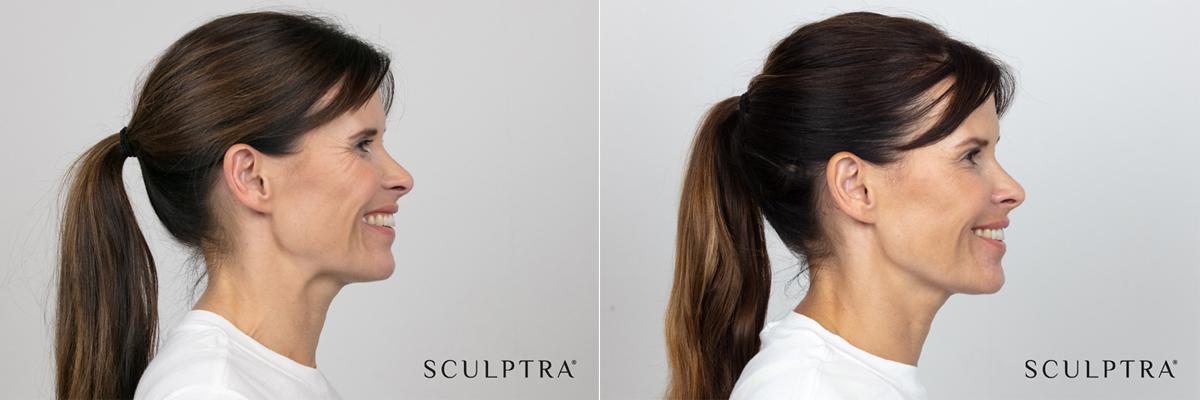 Patient före och efter Sculptra injektionsbehandling.