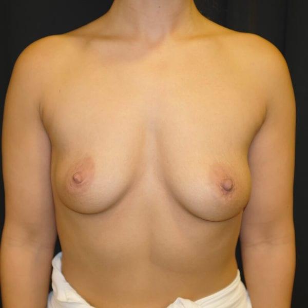 Patient fram innan hybridbröstförstoring 133070