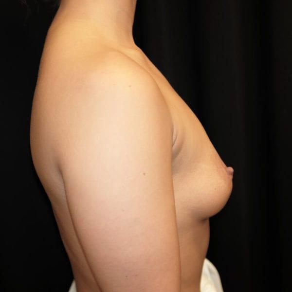 Patient sidan innan hybridbröstförstoring 133070