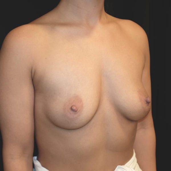Patient snett från sidan innan hybridbröstförstoring 133070