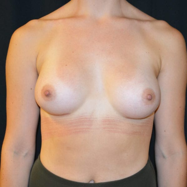 Patient fram efter bröstförstoring 166240