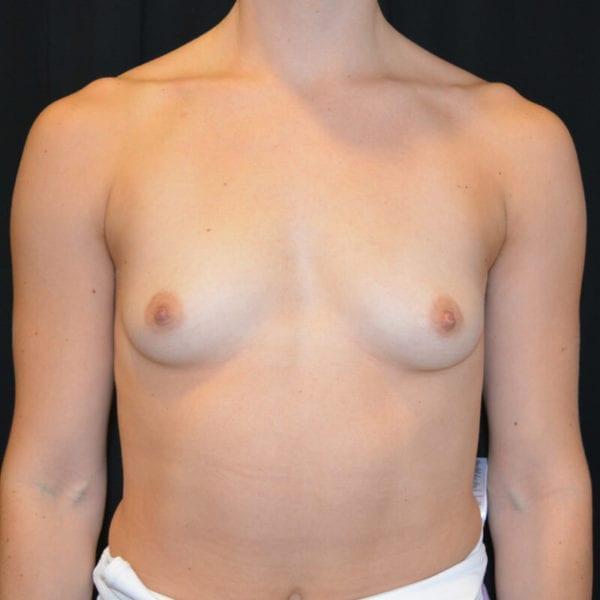 Patient fram innan bröstförstoring 166240