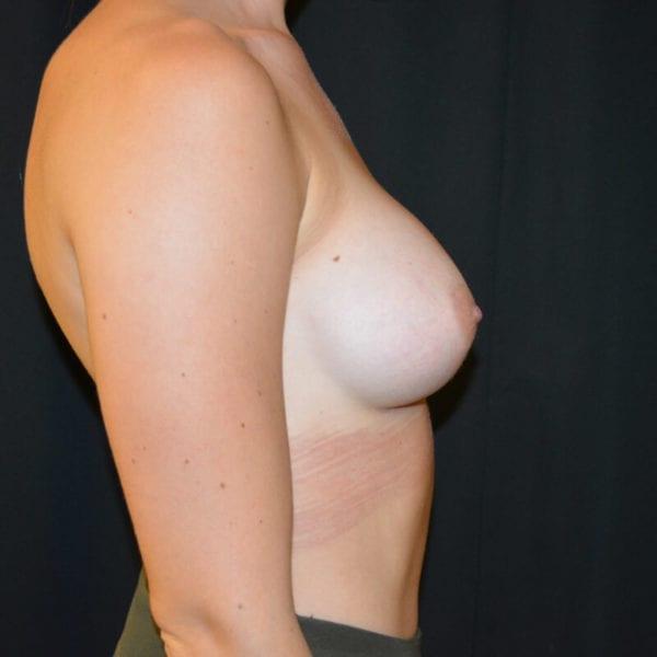 Patient från sidan efter bröstförstoring 166240