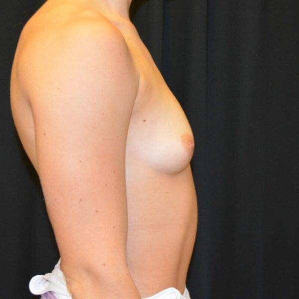 Patient från sidan innan bröstförstoring 166240