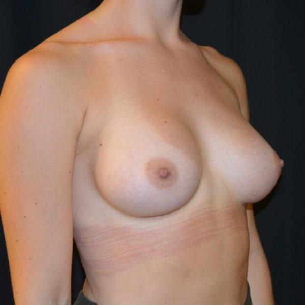 Patient snett från sidan efter bröstförstoring 166240
