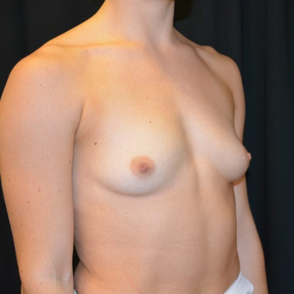 Patient snett från sidan innan bröstförstoring 166240