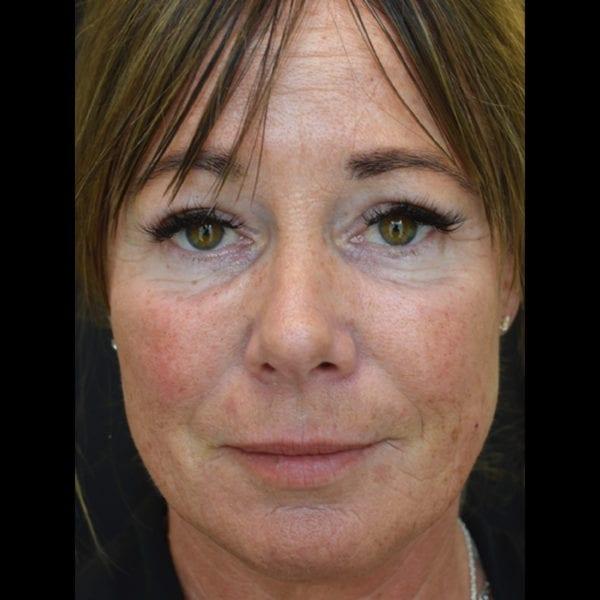 Patient fram efter fettransplantation till ansikte 183323