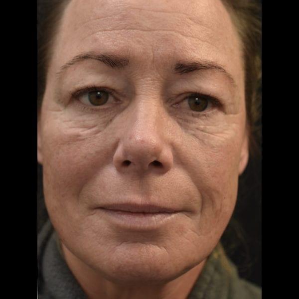 Patient fram innan fettransplantation till ansikte 183323