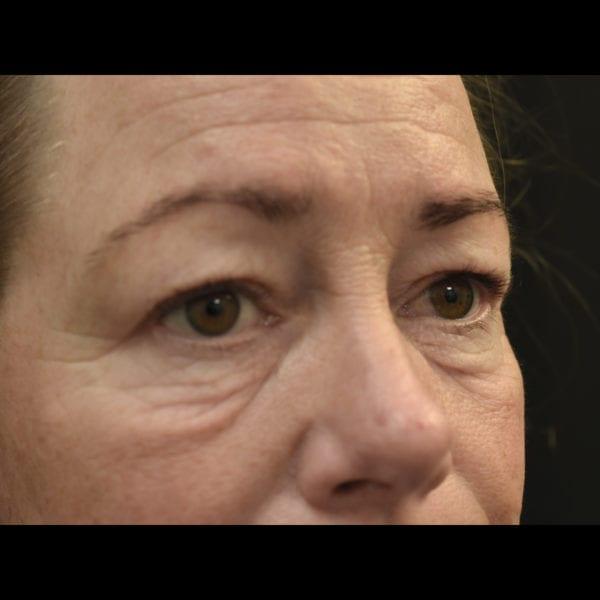Patient snett innan fettransplantation till ansikte 183323